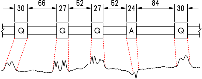 Figure 1 for Pattern Localization in Time Series through Signal-To-Model Alignment in Latent Space