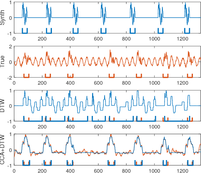 Figure 4 for Pattern Localization in Time Series through Signal-To-Model Alignment in Latent Space