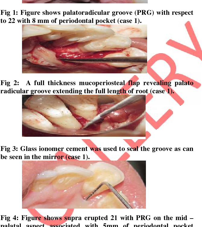 Approaches to Treat Palato Radicular Groove Based on its Anatomy ...