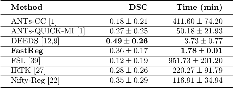 Figure 2 for FastReg: Fast Non-Rigid Registration via Accelerated Optimisation on the Manifold of Diffeomorphisms