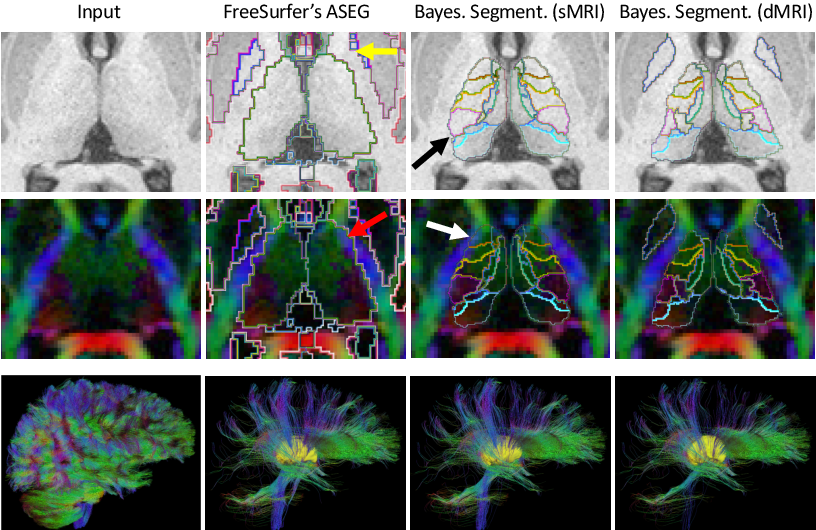 Figure 4 for Joint inference on structural and diffusion MRI for sequence-adaptive Bayesian segmentation of thalamic nuclei with probabilistic atlases