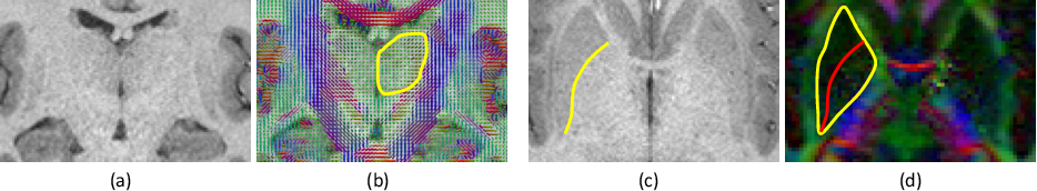 Figure 1 for Joint inference on structural and diffusion MRI for sequence-adaptive Bayesian segmentation of thalamic nuclei with probabilistic atlases