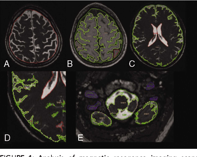 Figure 1 from Cerebral venous system and anatomical predisposition ...
