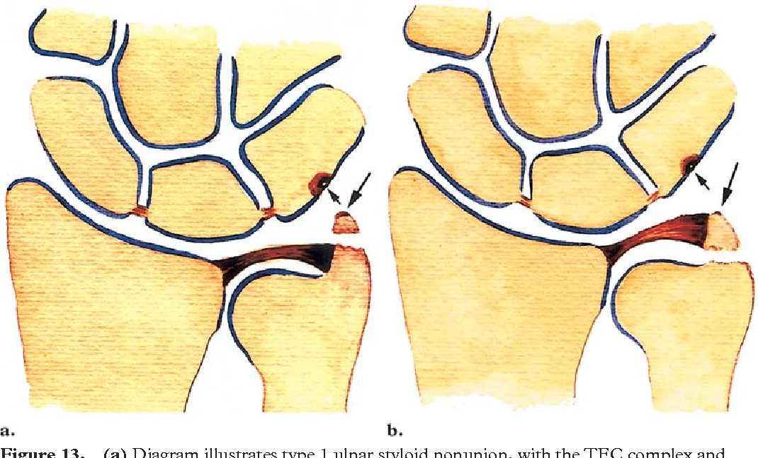 Imaging findings in ulnar-sided wrist impaction syndromes ...