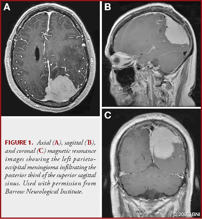 Dural arteriovenous fistula associated with superior sagittal sinus ...