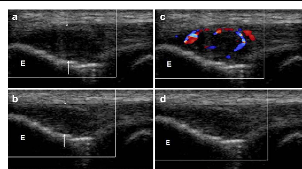 Fig. 1 (A) Coronal sonogram of common extensor tendon of the elbow (arrows) shows features of tendinopathy, with hypoechogenicity and effacement of the fibrillar pattern (boxed area). (B) With graded transducer compression, there is reduction in the tendon thickness (arrows). (C) Colour Doppler study shows marked hypervascularity within the tendon. (D) With transducer compression, there is suppression of the colour Doppler signal [See video 1]. E = lateral epicondyle