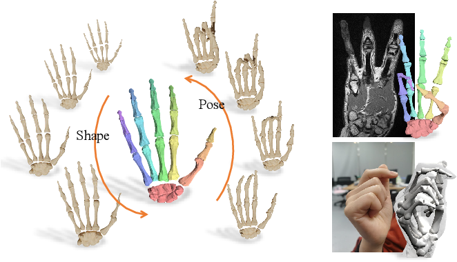 Figure 1 for PIANO: A Parametric Hand Bone Model from Magnetic Resonance Imaging