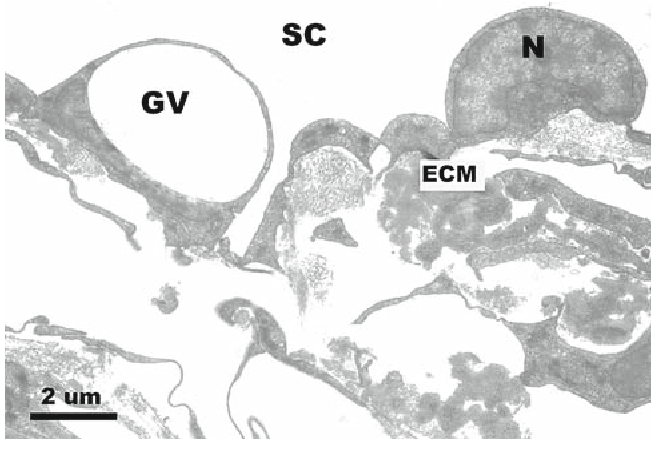 Fig. 12 Inner wall of Schlemm's canal of enucleated human eye perfused at 8 mmHg. GV giant vacuole; SC Schlemm's canal; ECM extracellular matrix; N cell nuclei. Reproduced from Ethier (2002) with permission of Elsevier