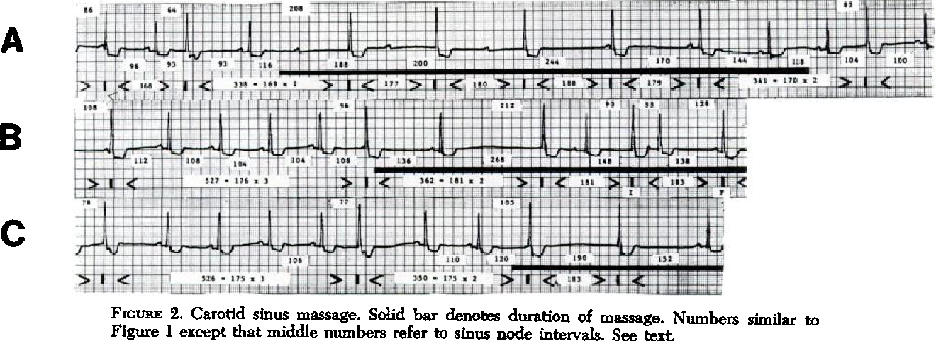 FIGURE 2. Carotid sinus massage. Solid bar denotes duration of massage. Numbers similar to Figure 1 except that middle numbers refer to sinus node intervals. See text.