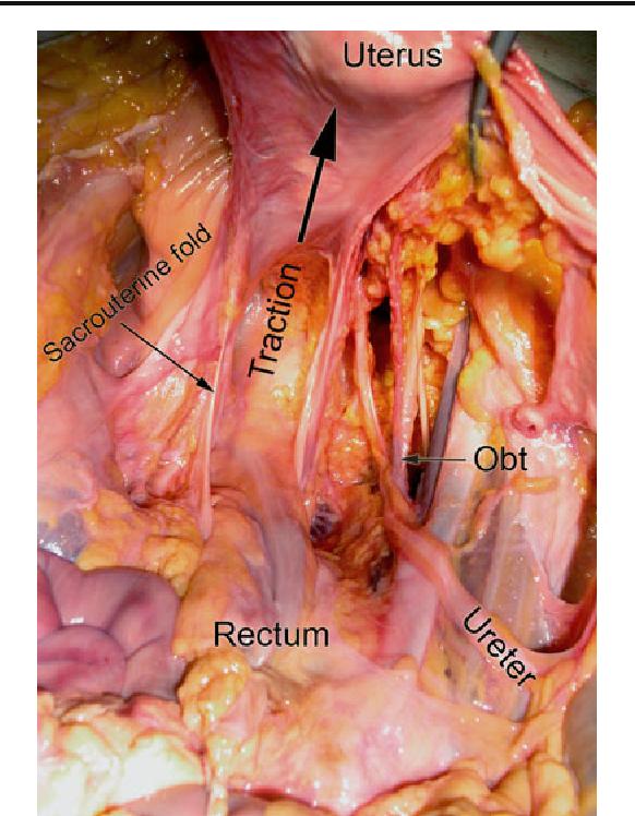 Surgical Anatomy Of The Uterosacral Ligament Semantic Scholar