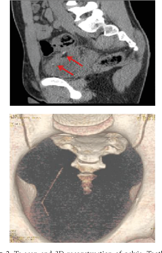 PDF] Enterovesical Fistula Caused by a Toothpick - Semantic