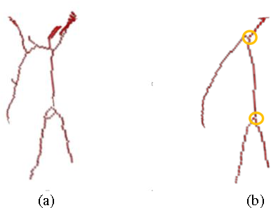 Figure 3 for Airway segmentation from 3D chest CT volumes based on volume of interest using gradient vector flow
