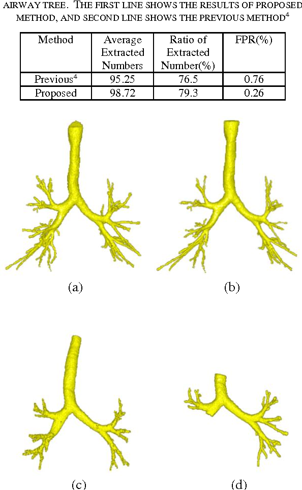 Figure 4 for Airway segmentation from 3D chest CT volumes based on volume of interest using gradient vector flow