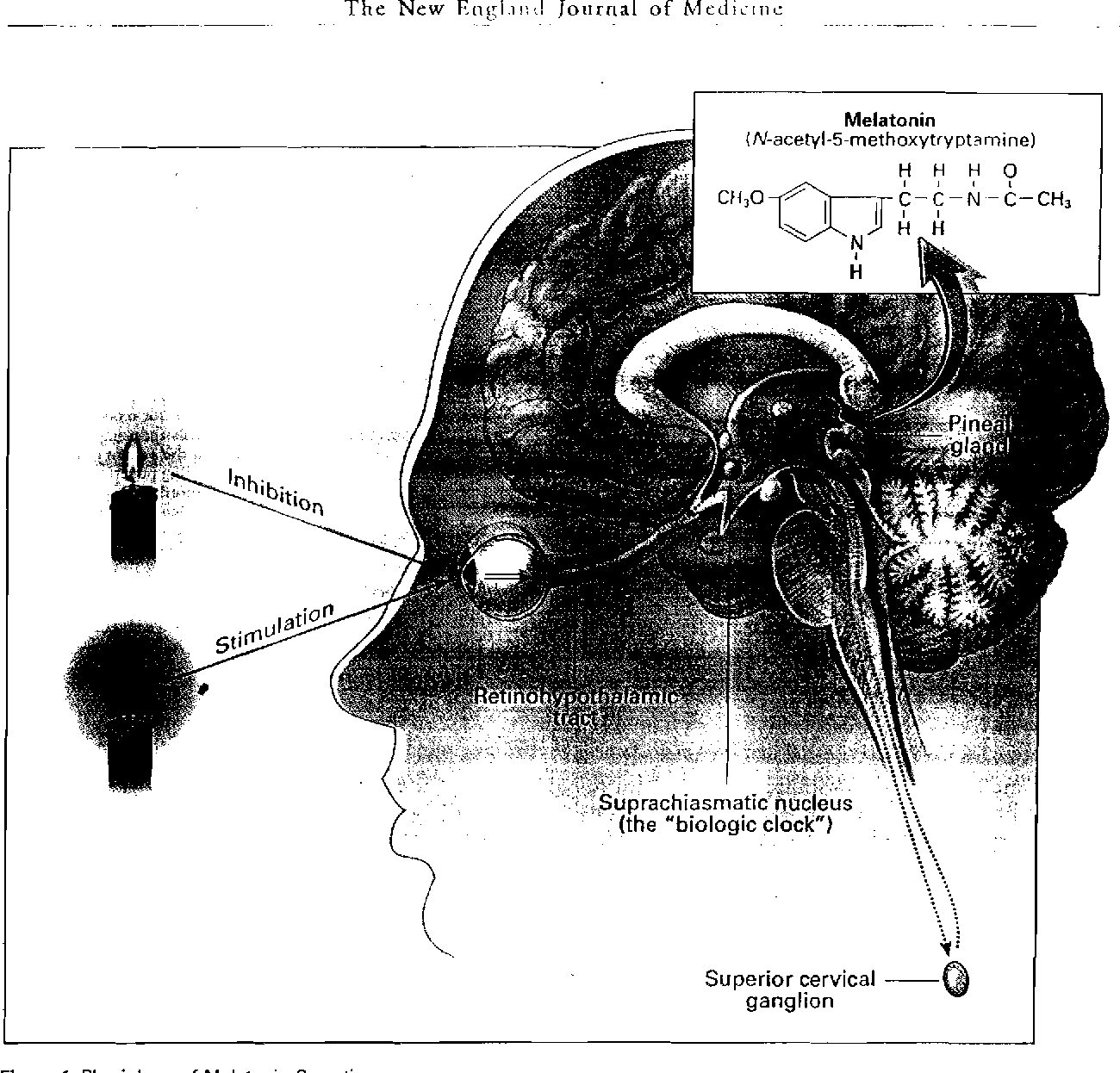 Evidence For An Effect Of Elf Electromagnetic Fields On Human Pineal