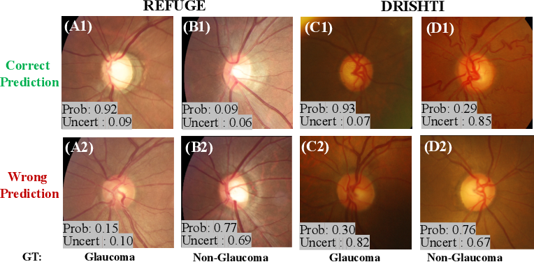 Figure 4 for Difficulty-aware Glaucoma Classification with Multi-Rater Consensus Modeling