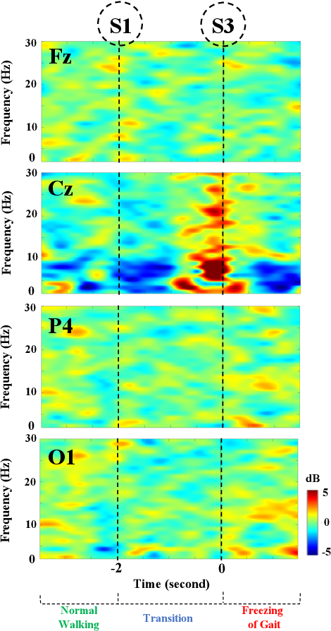 Figure 3 for Identification of EEG Dynamics During Freezing of Gait and Voluntary Stopping in Patients with Parkinson's Disease