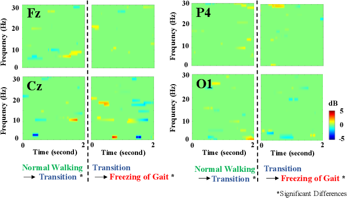 Figure 4 for Identification of EEG Dynamics During Freezing of Gait and Voluntary Stopping in Patients with Parkinson's Disease