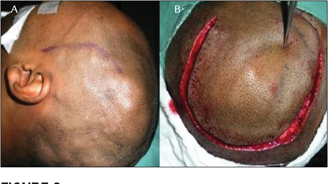FIGURE 2 A.Soft thickened scalp can be seen above the left temporal and occipital skull surfaces, corresponding to the scalp AVM. B.A horseshoe incision was made with a view to preserving scalp irrigation, critical to the success of the surgery.