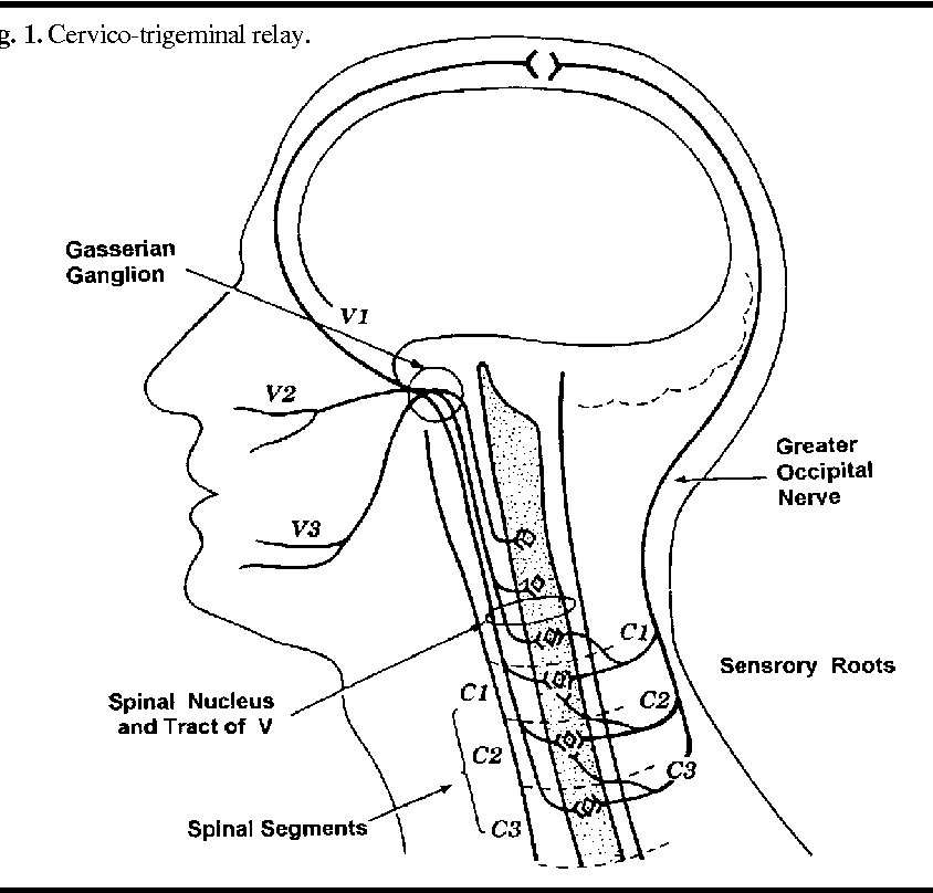 Cervicogenic Headache Prevalence And Response To Local Steroid