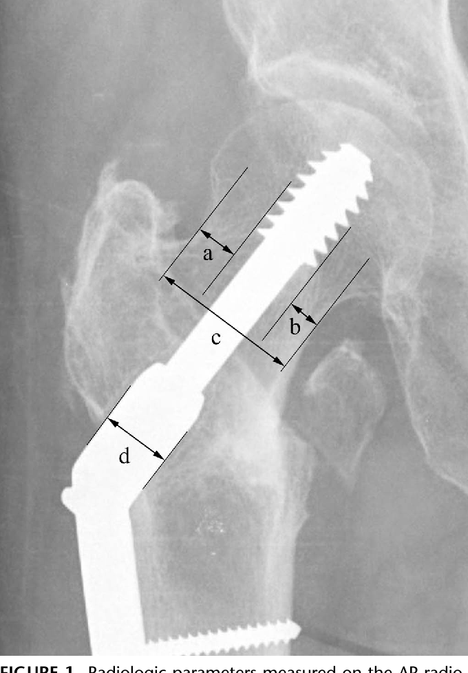FIGURE 1. Radiologic parameters measured on the AP radiograph. (a) Distance of thread-to-superior cortex, (b) distance of thread-to-inferior cortex, (c) anterior neck width, and (d) the outer diameter of the barrel of a CHS system is 12.5 mm.