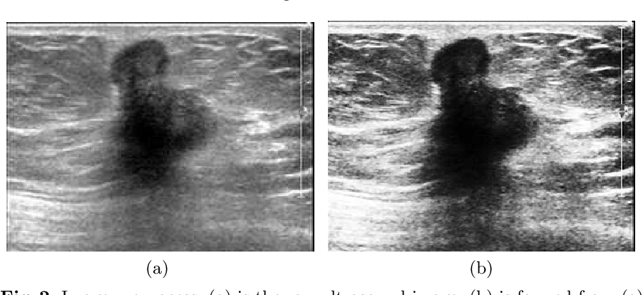 Figure 3 for Breast Cancer Classification with Ultrasound Images Based on SLIC