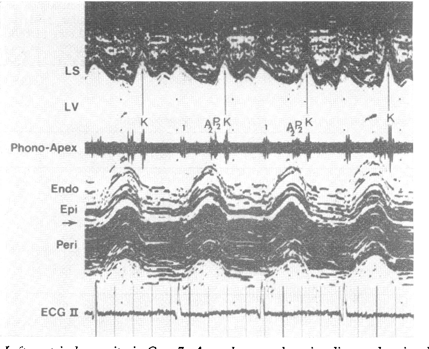 An Echocardiographic Study Of The Interventricular Septum In