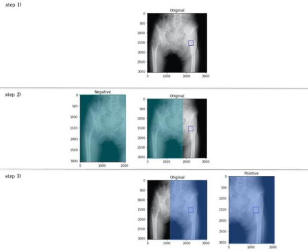 Figure 2 for A computer-aided diagnosis system using artificial intelligence for hip fractures significantly improves the diagnostic rate of residents. -Multi-institutional joint Development Research