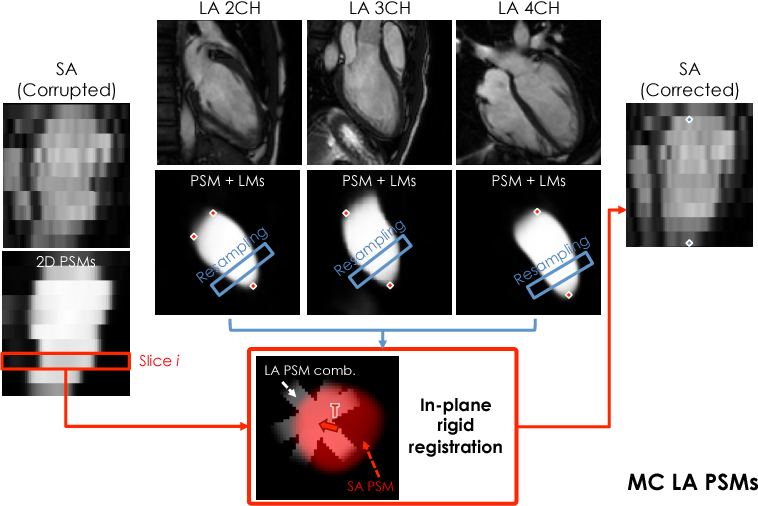 Figure 1 for A Comprehensive Approach for Learning-based Fully-Automated Inter-slice Motion Correction for Short-Axis Cine Cardiac MR Image Stacks