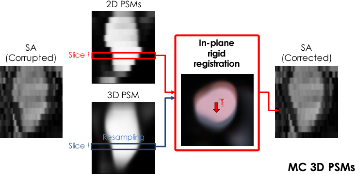 Figure 3 for A Comprehensive Approach for Learning-based Fully-Automated Inter-slice Motion Correction for Short-Axis Cine Cardiac MR Image Stacks