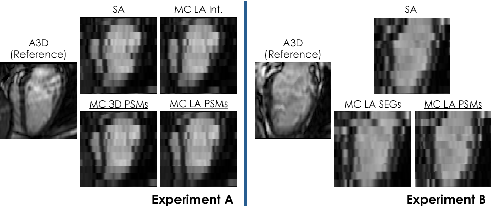 Figure 4 for A Comprehensive Approach for Learning-based Fully-Automated Inter-slice Motion Correction for Short-Axis Cine Cardiac MR Image Stacks