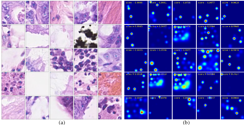 Figure 2 for Nuclei Detection Using Mixture Density Networks