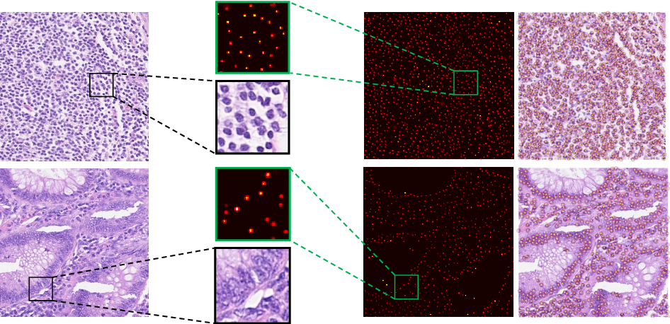 Figure 3 for Nuclei Detection Using Mixture Density Networks