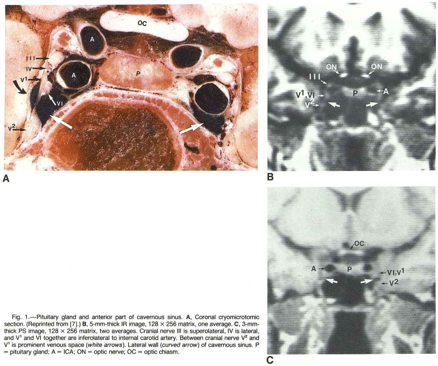 Figure 1 from Magnetic resonance imaging of the cavernous sinus ...