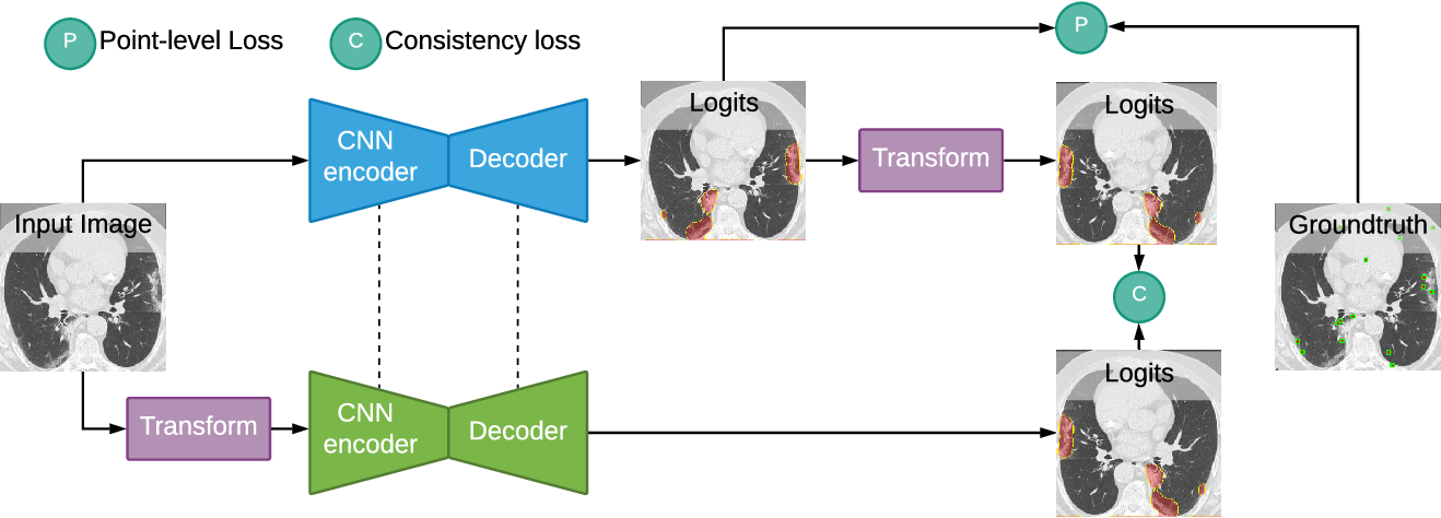 Figure 3 for A Weakly Supervised Consistency-based Learning Method for COVID-19 Segmentation in CT Images