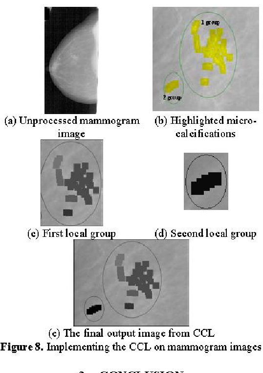 Figure 8. Implementing the CCL on mammogram images