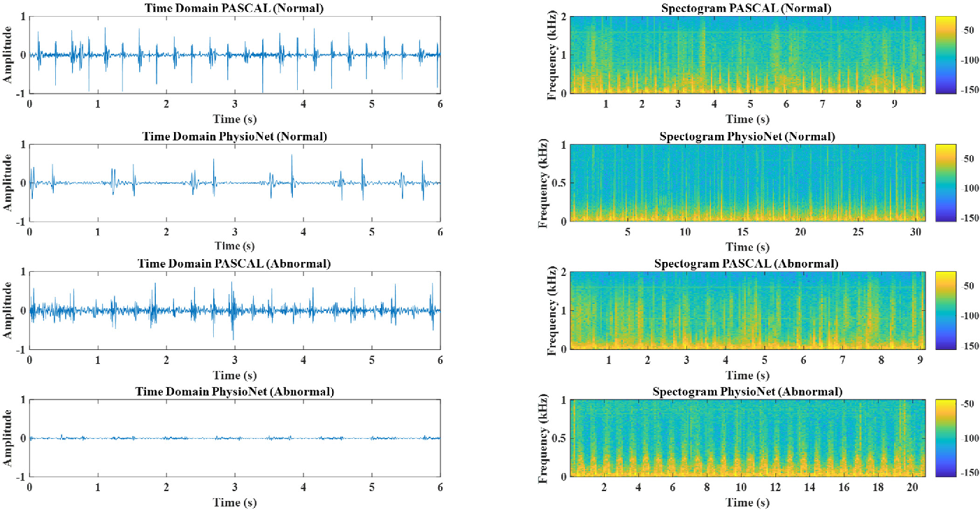 Figure 1 for Deep Learning Based Classification of Unsegmented Phonocardiogram Spectrograms Leveraging Transfer Learning
