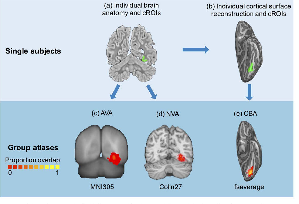 A cross-validated cytoarchitectonic atlas of the human ventral ...