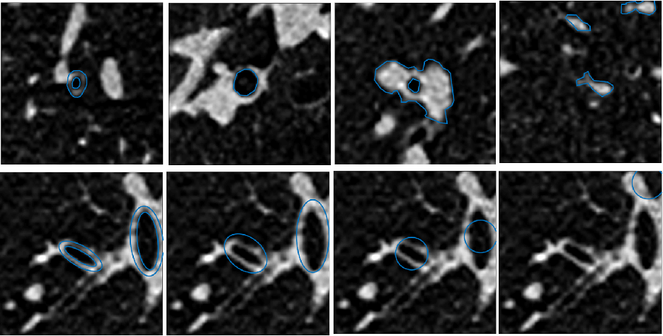 Figure 4 for Early Experiences with Crowdsourcing Airway Annotations in Chest CT