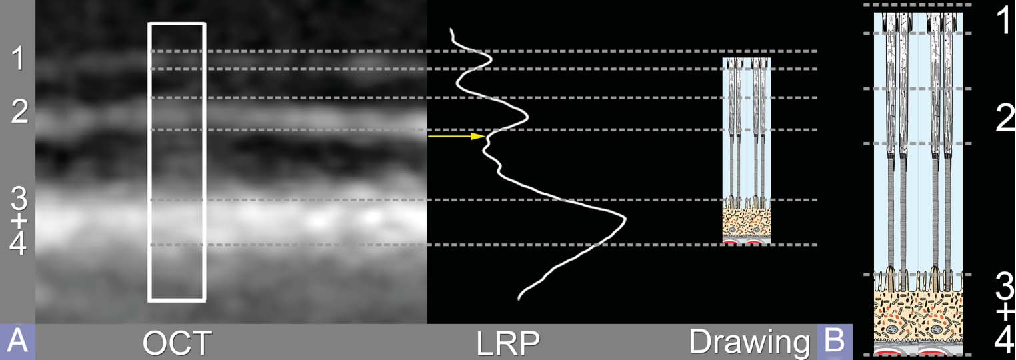 Fig. 6. A. A representative OCT image of the fovea showing the outer bands. In the central fovea, the third band appears to blend in with the fourth band. The highlighted box is a 10-pixelwide region used to create the LRP. The dashed lines show the agreement between the hyperreflective bands and the LRP. These dashed lines extend to a drawing scaled to coincide with the peak of the band attributed to the ELM (Band 1) and the junctional