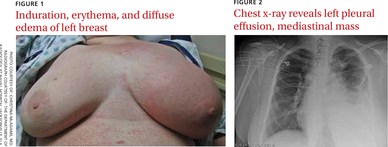 Breast changes during and after pregnancy