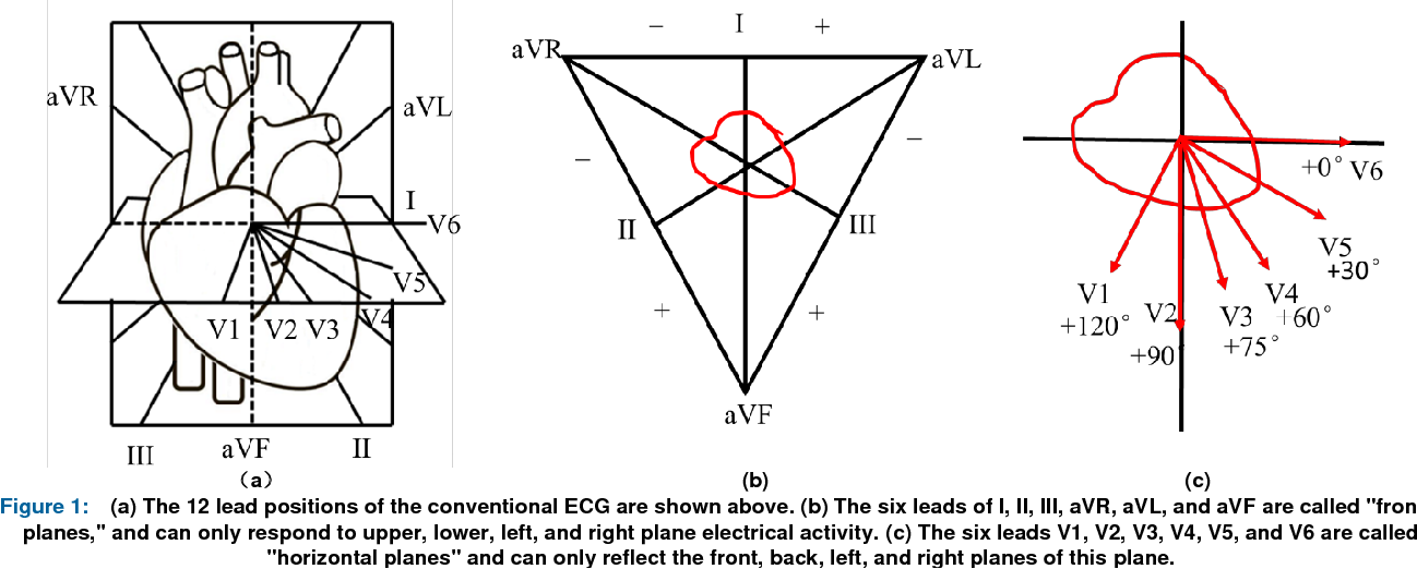 Figure 1 for A Study of Deep Feature Fusion based Methods for Classifying Multi-lead ECG
