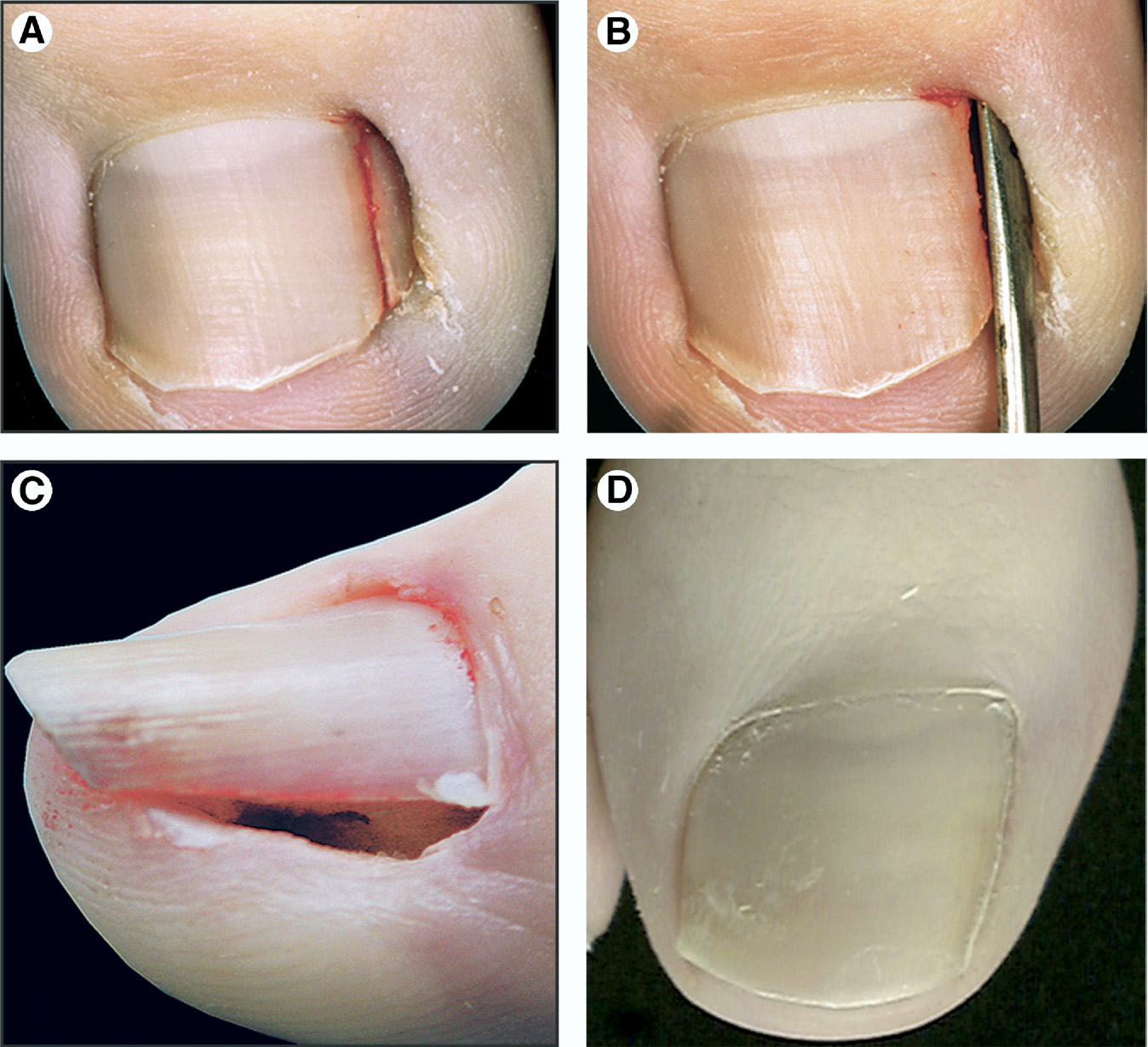 Figure 6 from Tips and tricks in nail surgery. - Semantic Scholar