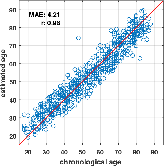Figure 4 for Estimating brain age based on a healthy population with deep learning and structural MRI
