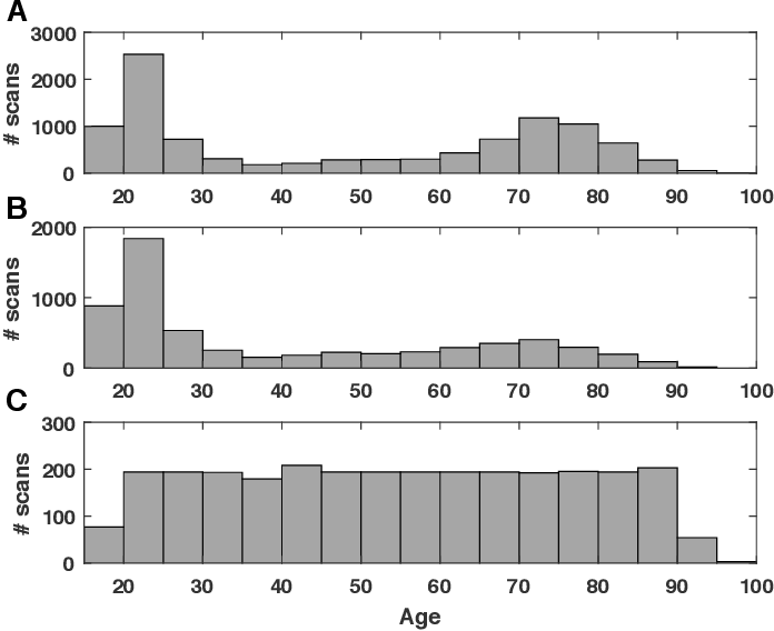 Figure 1 for Estimating brain age based on a healthy population with deep learning and structural MRI