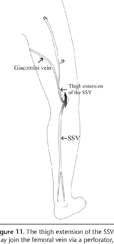 Ultrasonographic Anatomy Of The Lower Extremity Superficial Veins