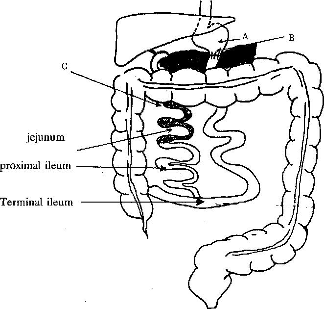 Figure 1 From Post Biliopancreatic Bypass Arthritis Dermatitis