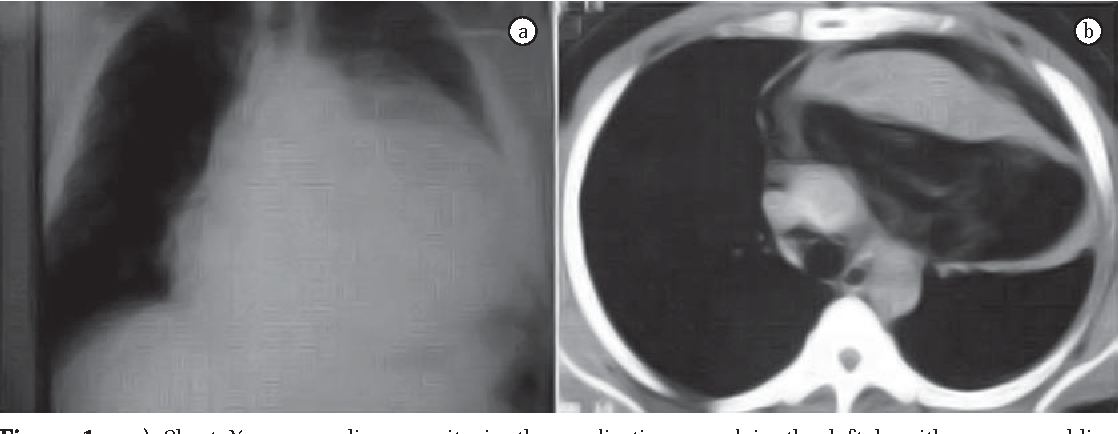 Asymptomatic giant mediastinal mass : a rare case of thymolipoma ...