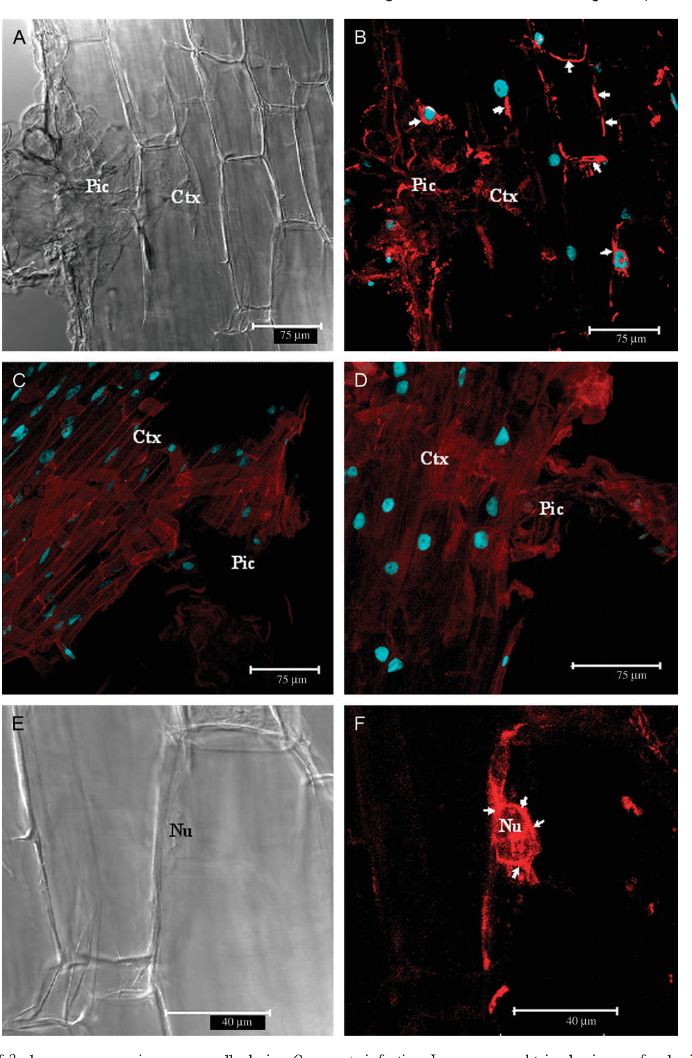 Fig. 5. Localization of b-glucanase expression on pea cells during O. crenata infection. Images were obtained using confocal microscopy and are full Z-series projections in (B), (C), (D), and (F), and single optical sections (Nomarsky) in (A) and (E). Nuclei appears blue due to DAPI staining. (A) Longitudinal section of an incompatible interaction of Orobanche crenata on resistant pea hybridized with the anti-sense probe. (B) The same as (A) showing the hybridization signal of the anti-sense probe (arrows). (C) Longitudinal section of a compatible interaction ofOrobanche crenata on resistant pea showing the absence of hybridization signal with the anti-sense probe. (D) Longitudinal section of an incompatible interaction of Orobanche crenata on resistant pea showing the absence of hybridization signal with the sense probe. (E) Detail of a cell of resistant pea hybridized with the anti-sense probe. (F) The same as (E) showing the hybridization signal of the anti-sense probe, mainly around the nucleus (arrows). Ctx, cortex; Pic, parasite intrusive cells; Nu, nucleus.