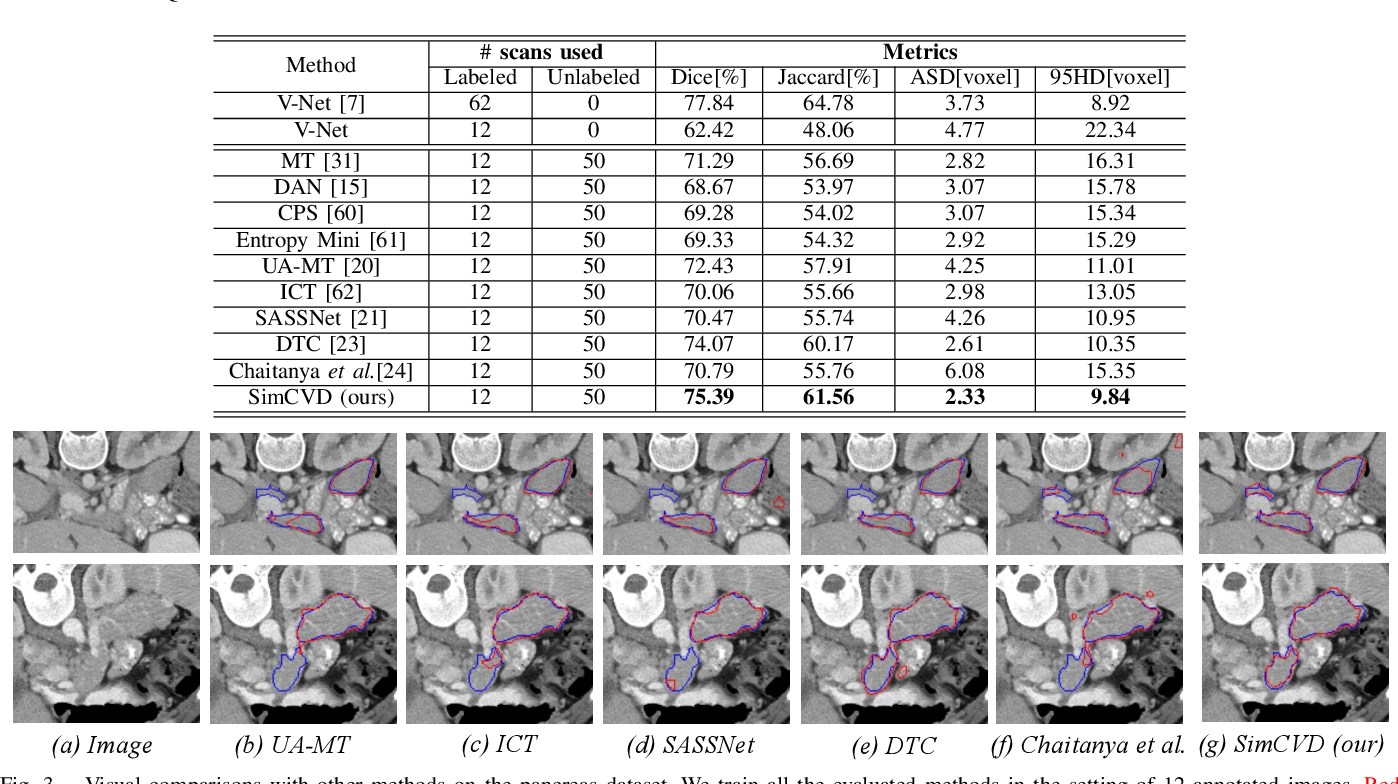 Figure 3 for SimCVD: Simple Contrastive Voxel-Wise Representation Distillation for Semi-Supervised Medical Image Segmentation