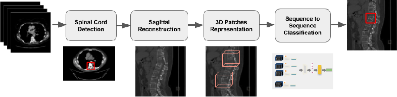 Figure 1 for 3D Convolutional Sequence to Sequence Model for Vertebral Compression Fractures Identification in CT